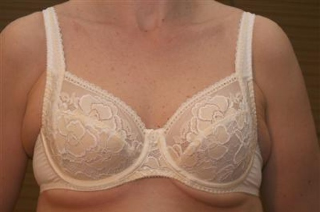 bad bra fitting symptoms